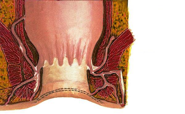 Was ist eine Stenose? - Ursachen, Symptome, Behandlung